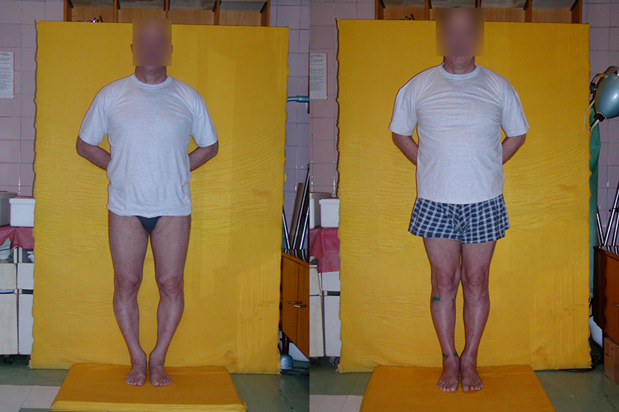 How to Fix Bow Legs Permanently in 60 Days