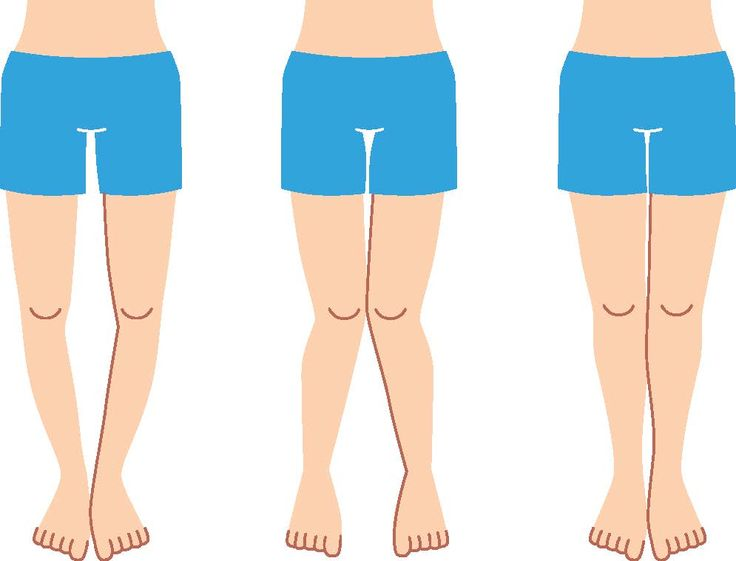 4 Bow Legs Correction Exercises that are 100% Effective
